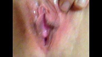 my ginormous raw beaver lips